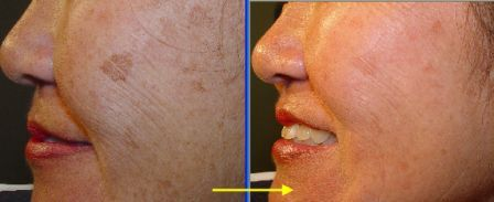 brown spot on face removed by Cutera Xeo