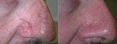 Rosacea removed by laser