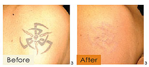 tattoo removal, example 1