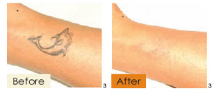 tattoo removal, example 2