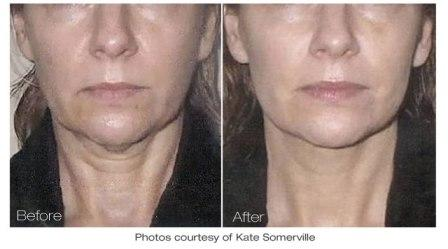 Facelift by Titan laser