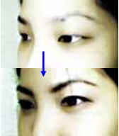 Asian double-eyelids