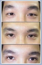 Result of DST double-eyelids technique