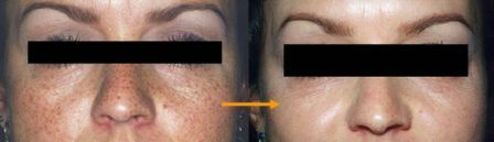 Removal of freckels by Q-switch laser