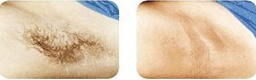 laser hair removal of underarm