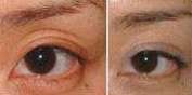 eyelid depression corrected by fat injection