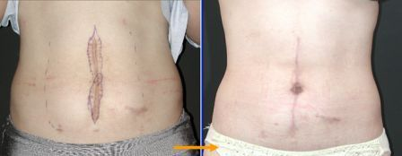 scar revision with tummy tuck